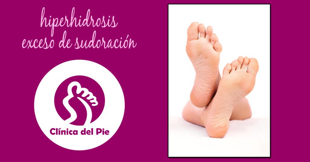 Hiperhidrosis, exceso de sudoración